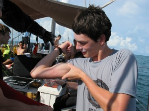 Dane shows us his guns!  Hahaha!  Actually, it's his jellyfish sting on his bicep!